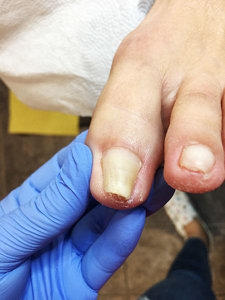 szponowatość paznokci